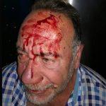 Un vecino de Bailén agrede al concejal de Obras y Servicios, que recibió siete puntos de sutura